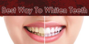 whitenteeth
